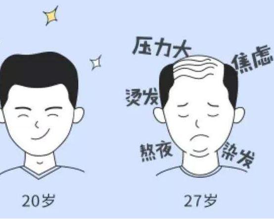 治疗脱发的方法有哪些