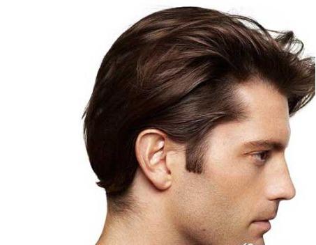 毛发移植手术的缺点有哪些呢