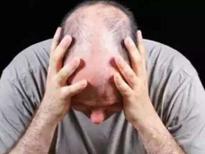 脱发真的能治疗好吗,看看这三点很重要