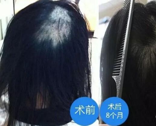 增生性疤痕可以植发吗