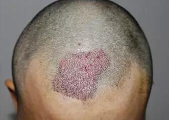 疤痕种植后,头发是不是长得比较慢