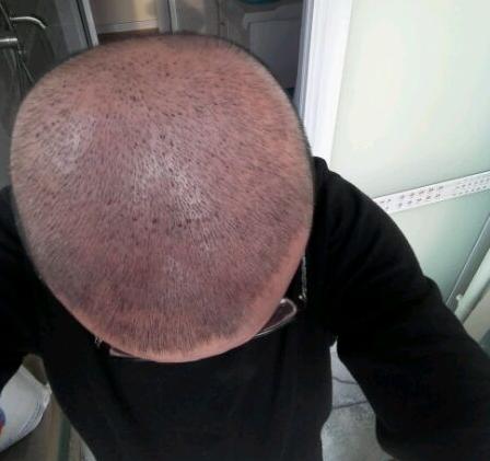 植发后为什么血痂不能抠掉
