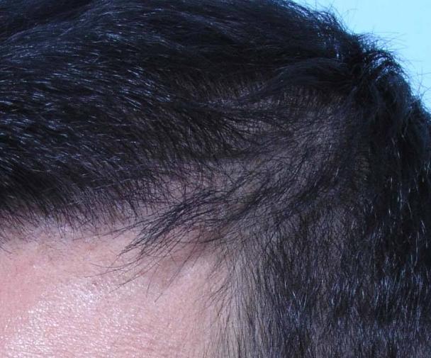 """如何避免植发后出现""""断层"""""""