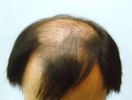 导致病理性脱发的原因是什么