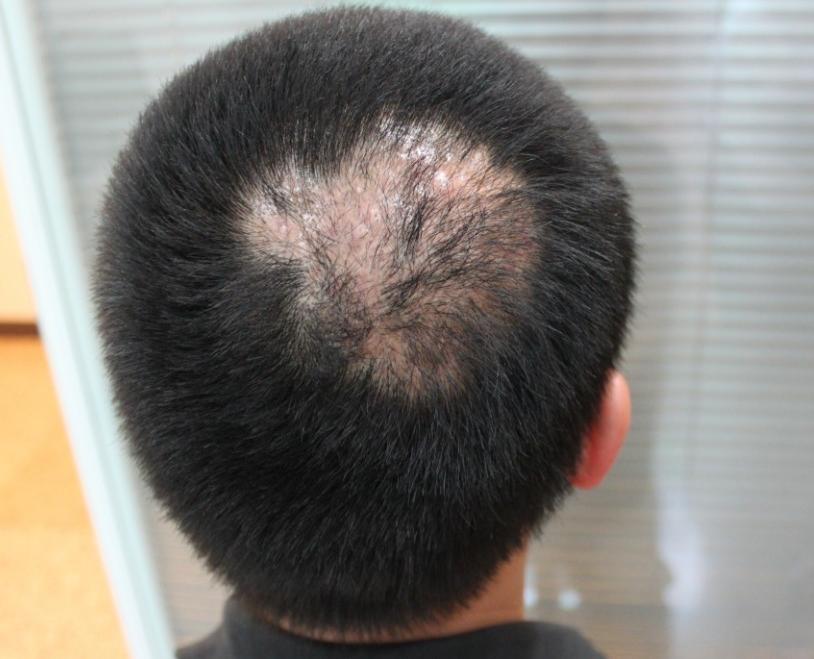头皮上有疤痕怎么办