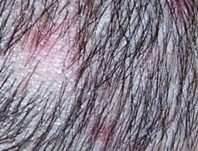 植发后的毛囊炎是怎么回事儿呢