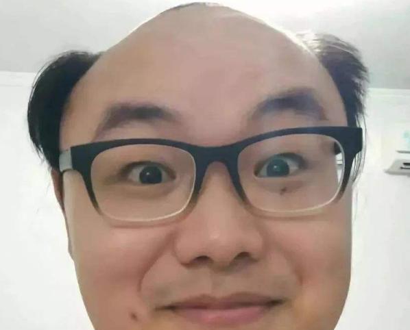 秃顶和肾虚有关系吗