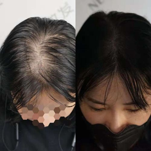 植发后还会掉头发吗