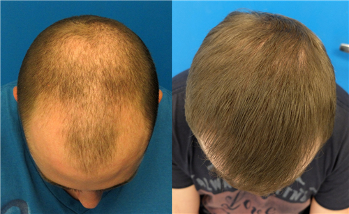 头发移植能持续多久