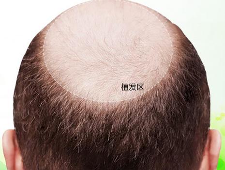 植发禁忌人群有哪些