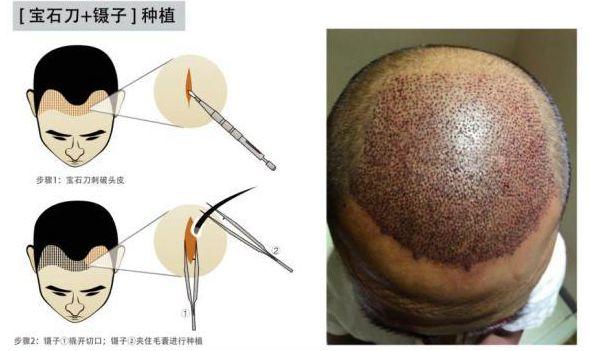 什么微针植发,有啥优缺点