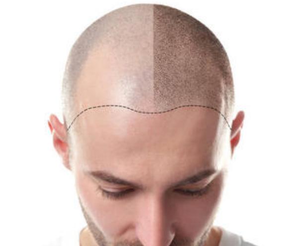 微针植发后头发还会再掉吗