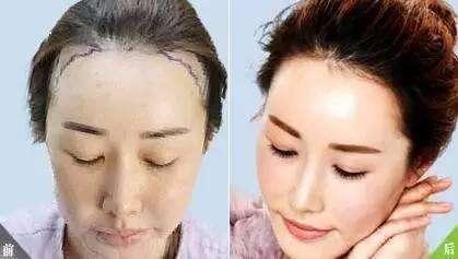 南京做植发哪家医院好?效果怎么样?