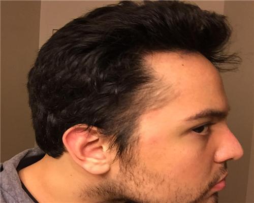 头部一侧脱发是怎么回事