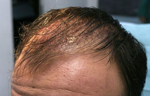 植发多久可以看到效果