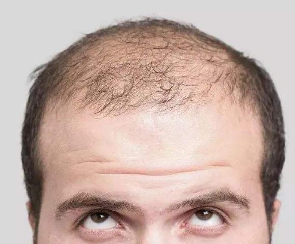 油脂性脱发是毛囊坏死了吗