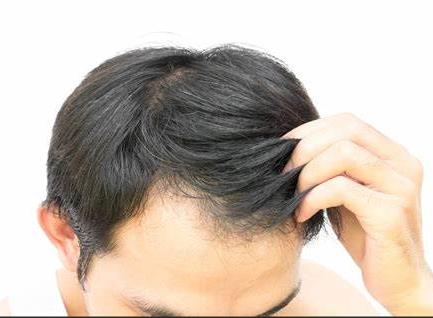 年轻人脱发可以用生姜擦吗