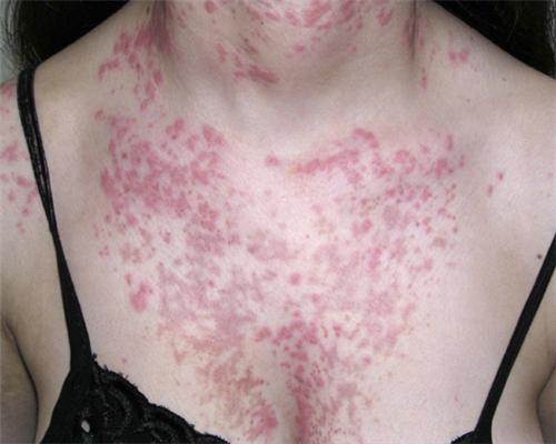 色素性痒疹会导致脱发吗