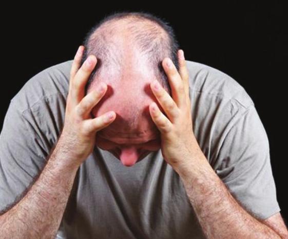植发治疗油脂性脱发靠谱吗