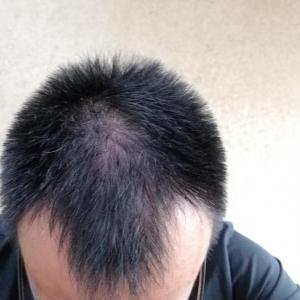 杭州做植发哪家医院比较好?