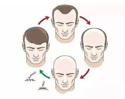 做毛发移植需要满足哪些条件