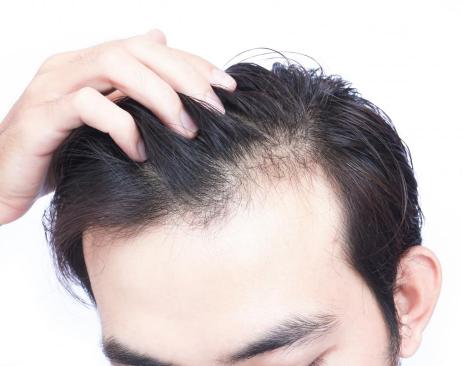 无痕植发手术对术后的生活有影响吗