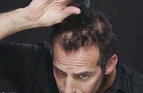 对治疗脱发有哪些建议