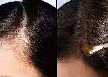 纹过发际线后还可以进行发际线种植吗