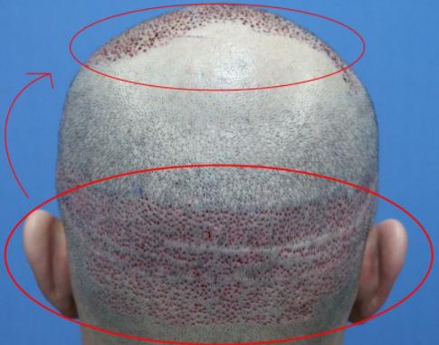 毛发移植后的后脑勺多久可以恢复正常