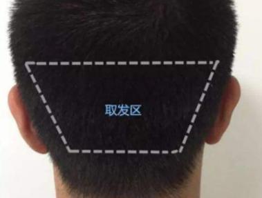为什么植发要从后脑勺提取毛囊