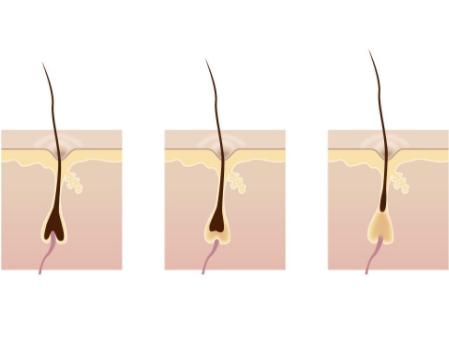 毛囊有什么特性
