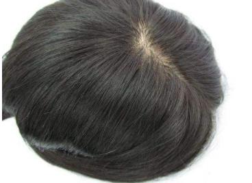 植发和织发有什么区别
