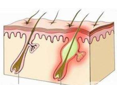 为什么会有毛囊炎,毛囊炎脱发该怎么办