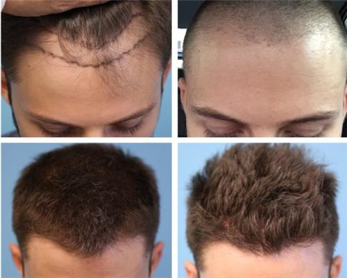 植发手术后脱发的预防方法