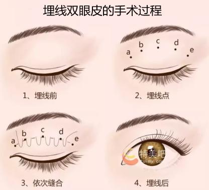 埋线双眼皮的手术过程