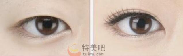 双眼皮术前术后对比
