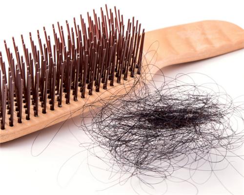 患者可以了解哪些脱发的原因