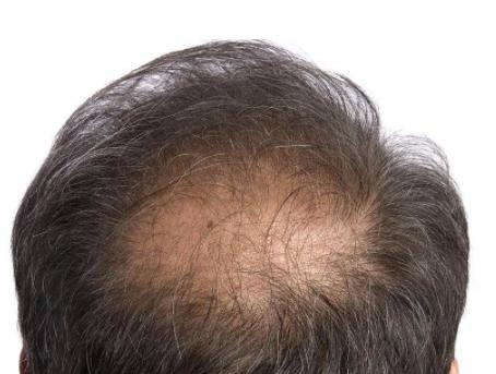 油脂性脱发是永久性的吗