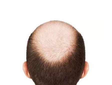 秃顶的前兆有哪些