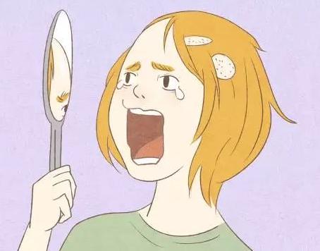 为什么斑秃被称为是鬼剃头呢?