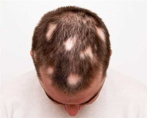 脱发是由单个因素导致的吗