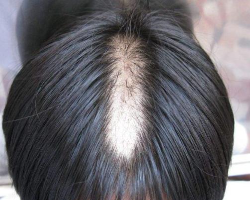 斑秃部位有点痒是怎么回事儿呢
