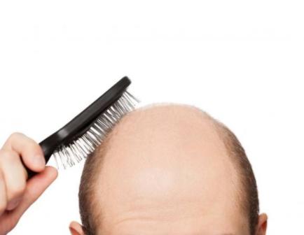 秃顶和遗传有关系吗