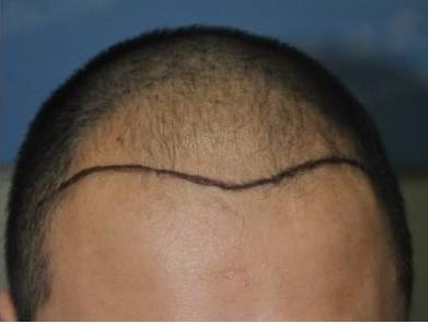 发际线后移就是脱发吗