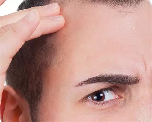 脱发有哪四大症状
