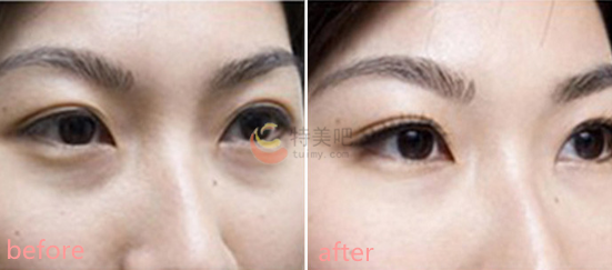玻尿酸去黑眼圈案例分享