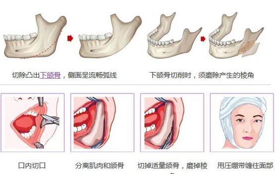 下颌角磨骨简图