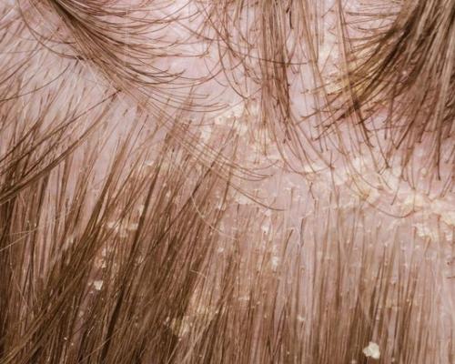 头皮屑和脱发之间的关系