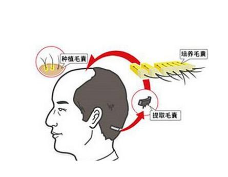 不同的脱发级别,植发需要多少个毛囊单位