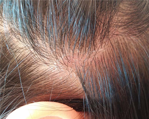 导致头皮头发干燥的因素